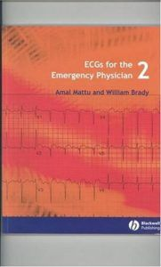 ECGs for the Emergency Physician 2 [PDF]