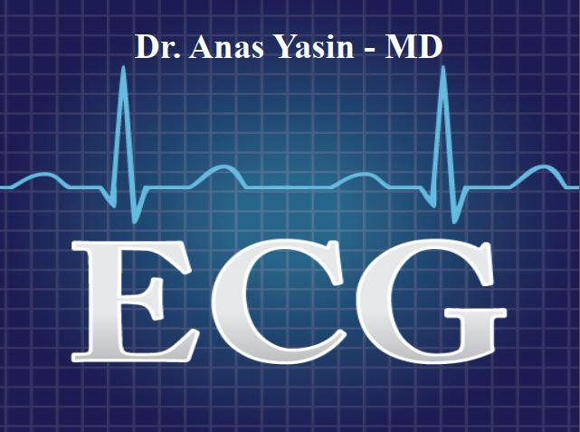 ECG Basics PDF By Dr. Anas Yasin - MD