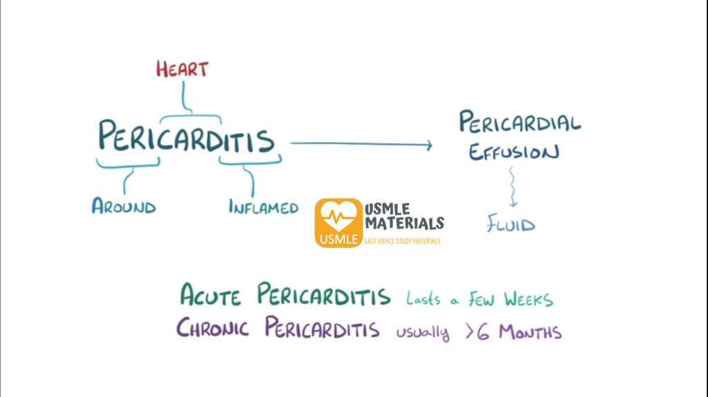 Pericarditis And Pericardial Effusion
